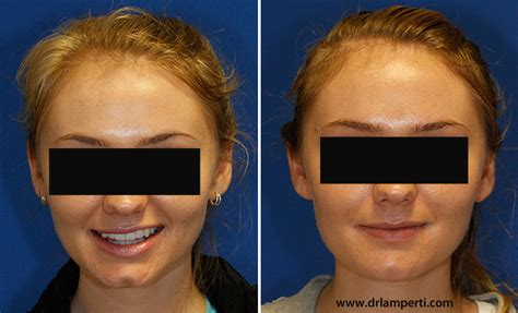 remedy fr cleft chin how to remove a cleft chin seattle facial plastic