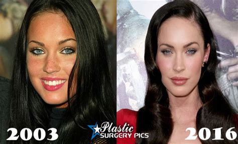 megan fox tattoo removal before and after megan fox plastic surgery before and after pics