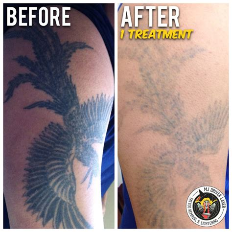 starting a tattoo removal business mj driver laser removal lightening melbourne in
