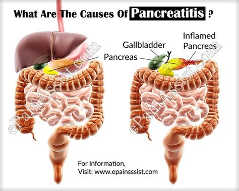 pancreatitis diet for dogs diet for with pancreatitis clothing