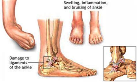 dolore alla caviglia lato interno rottame inside forum triumphchepassione tcp