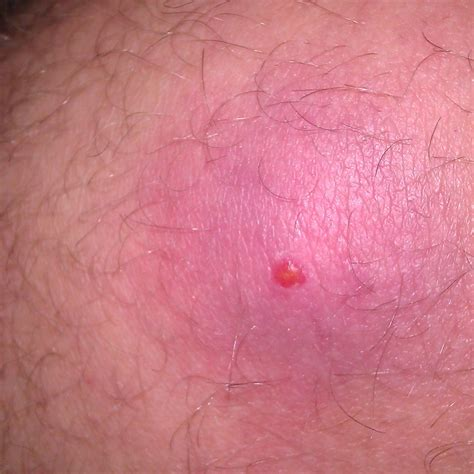 skin yeast infection treatment mrsa skin infections treatment pictures photos