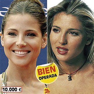 marys extreme makeover face nose and body 20 best extreme makeover s images on pinterest before