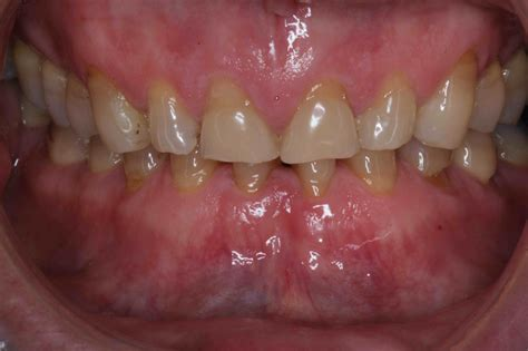 smile makeover   gallery cosmetic dentists