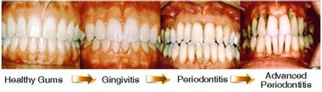 what color should my gums be gingivitis causes symptoms and prevention abeyek
