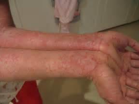 dermatite at 243 pica tratamentos fotos pomada rem 233 dios e
