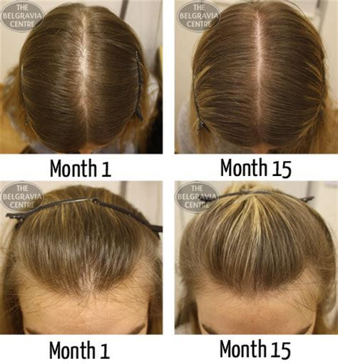 rogaine hair loss pattern hair loss in women a guide lavina health and beauty