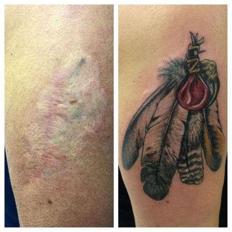 tatuagem para cobrir cicatriz dicas e mais de 40 ideias