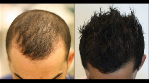hair stylist gor hair loss in nj hair stylist gor hair loss in nj secrets hair stylists