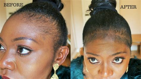 best braides for thinning edges how to fill up thin edges instantly youtube