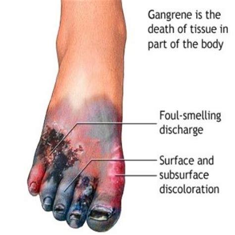 diabetes symptoms 5 major symptoms of gangrene in diabetes cures diabetes treatment