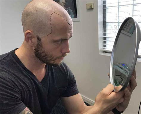 scalp micropigmentation in pakistan hair calculator the best hair of 2018
