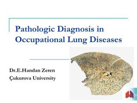 Asbestosis Pathology Outlines by Ppt Occupational Lung Diseases Hypersensitivity Pneumonitis Asbestosis Silicosis Powerpoint