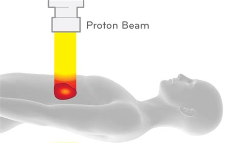 Proton Radiotherapy by Learn More About Proton Beam Therapy