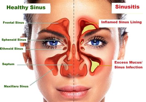 Sinus Efection Detox Symtom by Relief From Sinusitis Home Treatment For Chronic