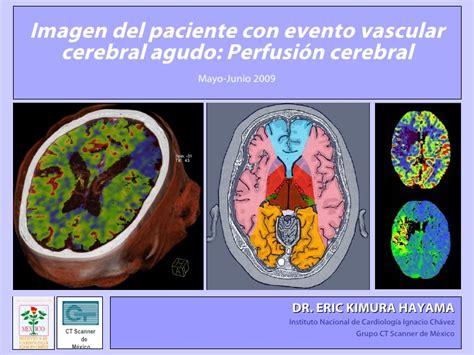 xerebrum group mayo 2009 prefusion cerebral ekt