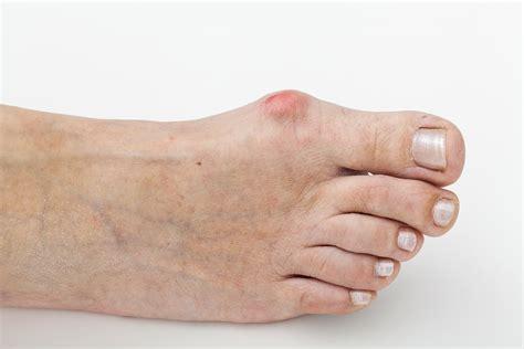 Common Foot Problems common foot problems
