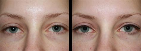 tattoo eyeliner before and after tattooed eyeliner before and after www imgkid com the