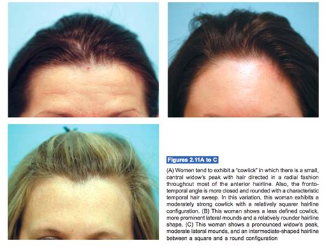 types of hairlines different types of hairlines full information on medical