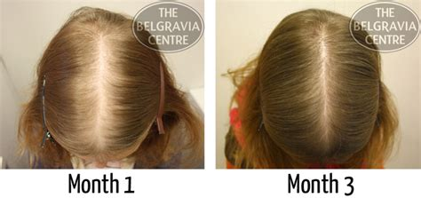 20 month old hair thinning on top 20 month old hair thinning on top women s hair loss