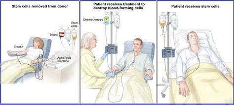 lymphoma treatment cost 17 best ideas about non hodgkins lymphoma on hodgkin s lymphoma oncology