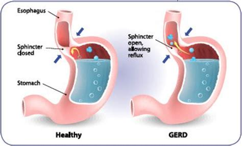Side Effects Of Proton Inhibitors by Acid Reflux Medication Health Risks Extension