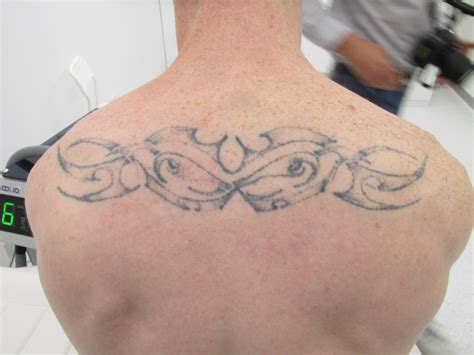 tattoo removal after 1 treatment ink undone laser removal melbourne part 2