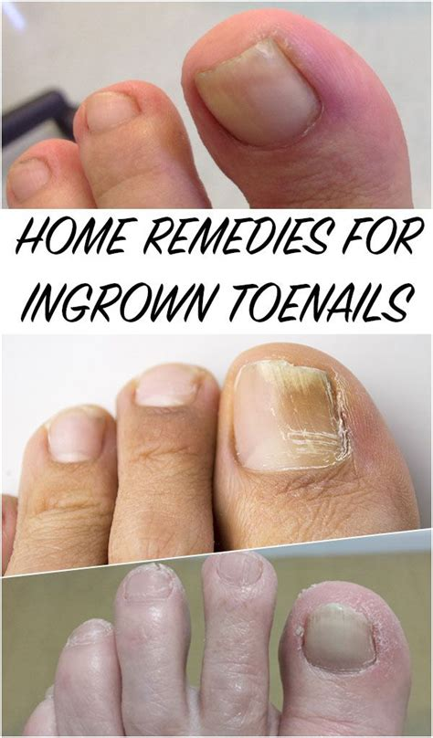 25 best ideas about ingrown toenail treatment on