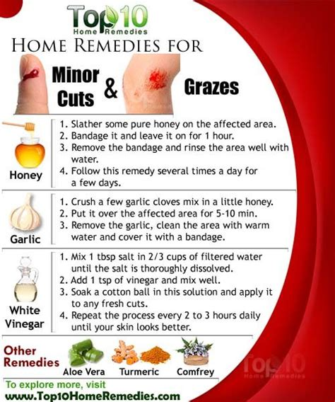 home remedies for minor cuts and grazes top 10 home remedies