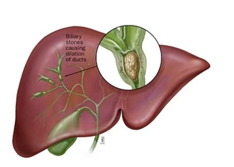 Will Liver Detoxing Cause Your Joints To Ache by Druglessdetox The Liver Flush Dr Bob The Drugless