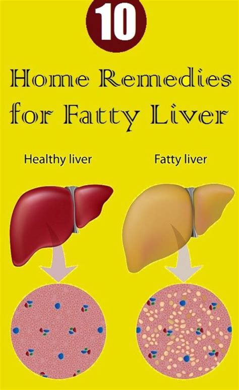 Sinus Infection Liver Detox by 17 Best Images About Healthy Me On Sinus