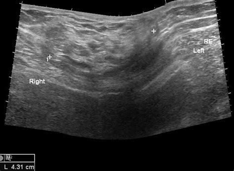 signs of hernia after c section incisional hernia image radiopaedia org