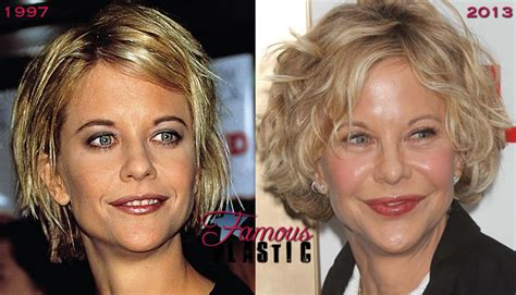 when did meg ryan have a face lift meg ryan before and after bad plastic surgery botox