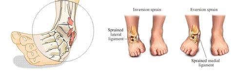 dolore al malleolo interno taping per distorsione alla caviglia taping elastico