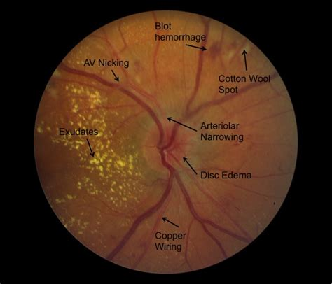 fundus exam findings 71 copper wiring ophthalmology hypertensive retinopathy