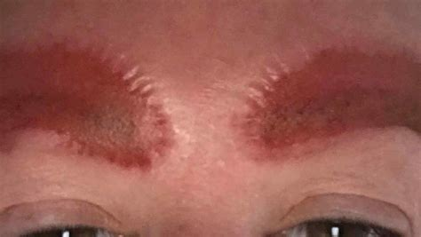 woman left with horrific scars after eyebrow tattoos