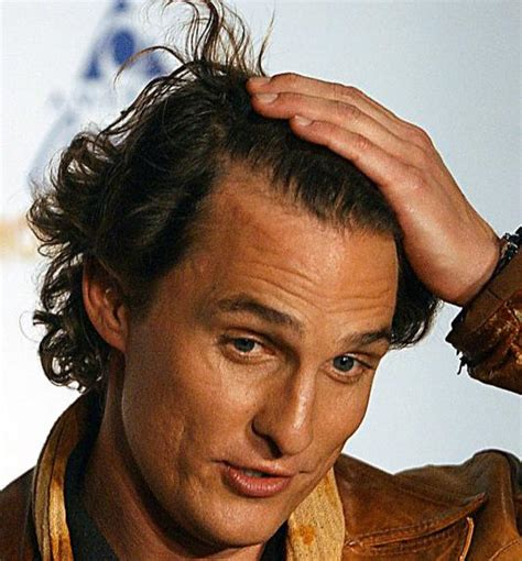 matthew mcconaughey hair style matthew mcconaughey hair transplant before and after