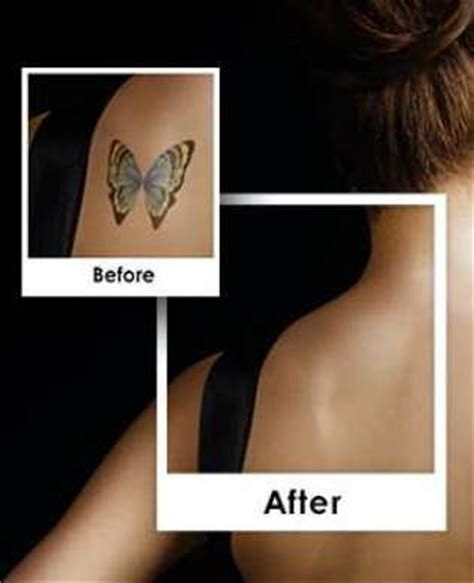 top laser removal carolina picosure