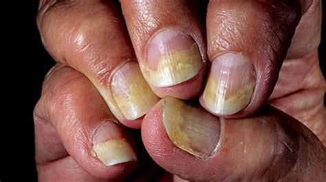 what causes psoriasis 2017 nail psoriasis medical treatment nail psoriasis treatment symptoms of psoriasis of the