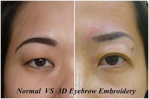 tattoo removal singapore price 100 eyebrow embroidery removal singapore