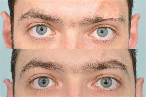 eyebrow transplant spiky hairs eyebrow transplants hair repair clinic