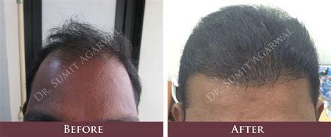 dhi hair transplant reviews dhi hair transplant reviews hair transplantation in mumbai
