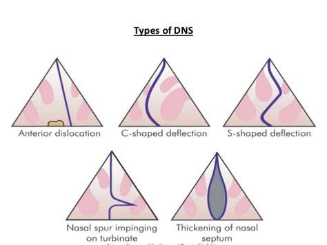 deviated septum diagram disease of external nose deviated nasal septum fb in nose