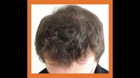 fue hair transplant 1920 grafts whtc www ufue fue hair transplant 704 grafts whtc www ufue