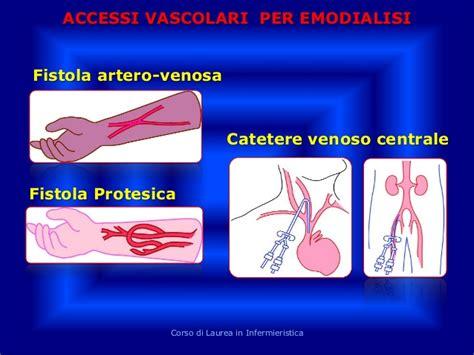 fistola interna seminario la dialisi 4 11 2013