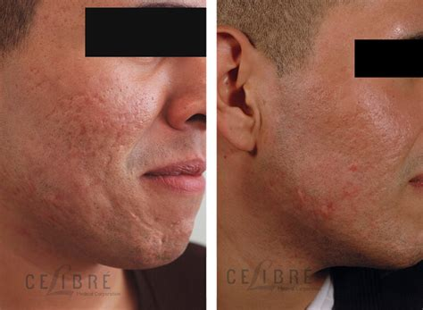 scar removal scar removal before and after pictures to pin on pinterest