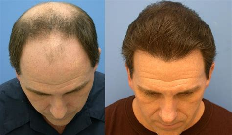 new hair transplant the worst male hair in hollywood newhairstylesformen2014 com
