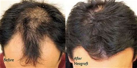 neograft hair transplant nyc fue hair restoration in neograft follicular unit extraction fue hair transplant