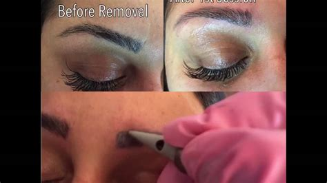 non laser tattoo removal uk non laser removal
