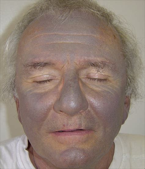 gray skin color photodistribution of blue gray hyperpigmentation after